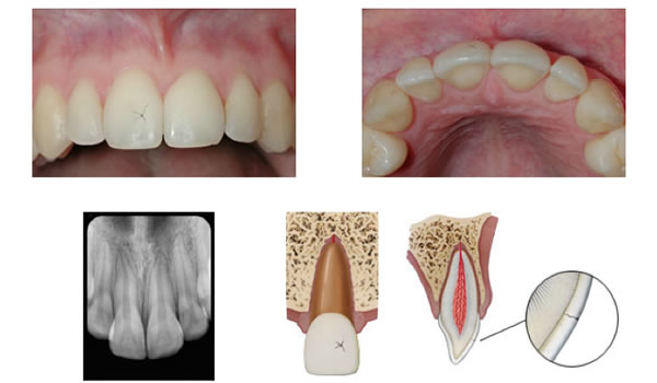Dental Trauma Part I Infraction Crown Fractures Amp Vital